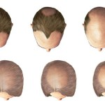 Hair loss: Major signs and symptoms