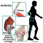 Is It Really Arthritis?