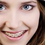 Uses of Braces through Orthodontics