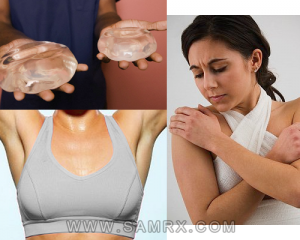 breast-augmentation-for-the-ideal-figure